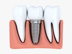 Dental Implants | Dentist Wantirna South