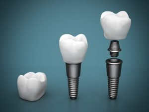 who-performs-a-dental-implant-procedure-and-how-much-do-they-cost