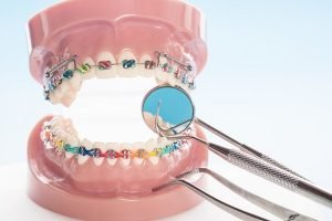 orthodontics wantirna south