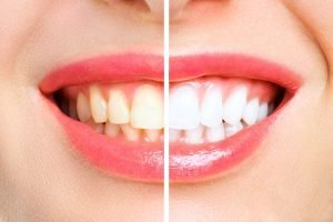 zoom-whitening-wantirna-south